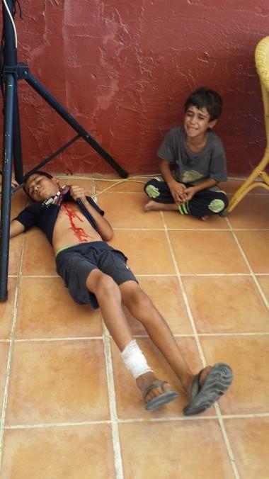 Gaza kids wounded