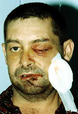 Victim Paul Denvir lost an eye and suffered serious head injuries