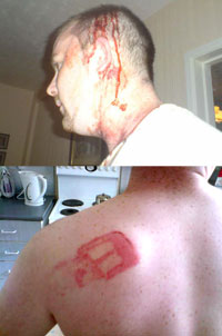 ATTACK: Stephen Kelly, bloody and battered following the horrific attack at his home